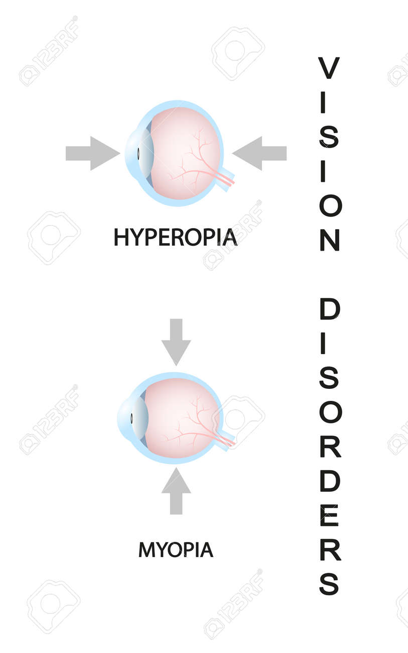 Vision minus 1 - what does it mean, can Myopia be cured - is it minus or plus 87