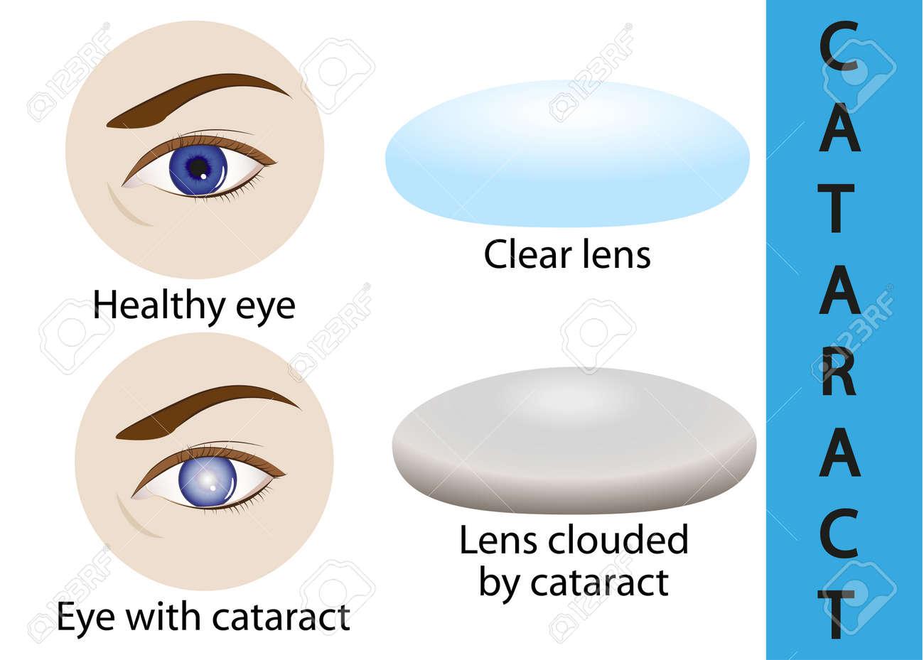 A Cataract Is An Clouding Crystalline Lens Inside The Eye. Royalty ...