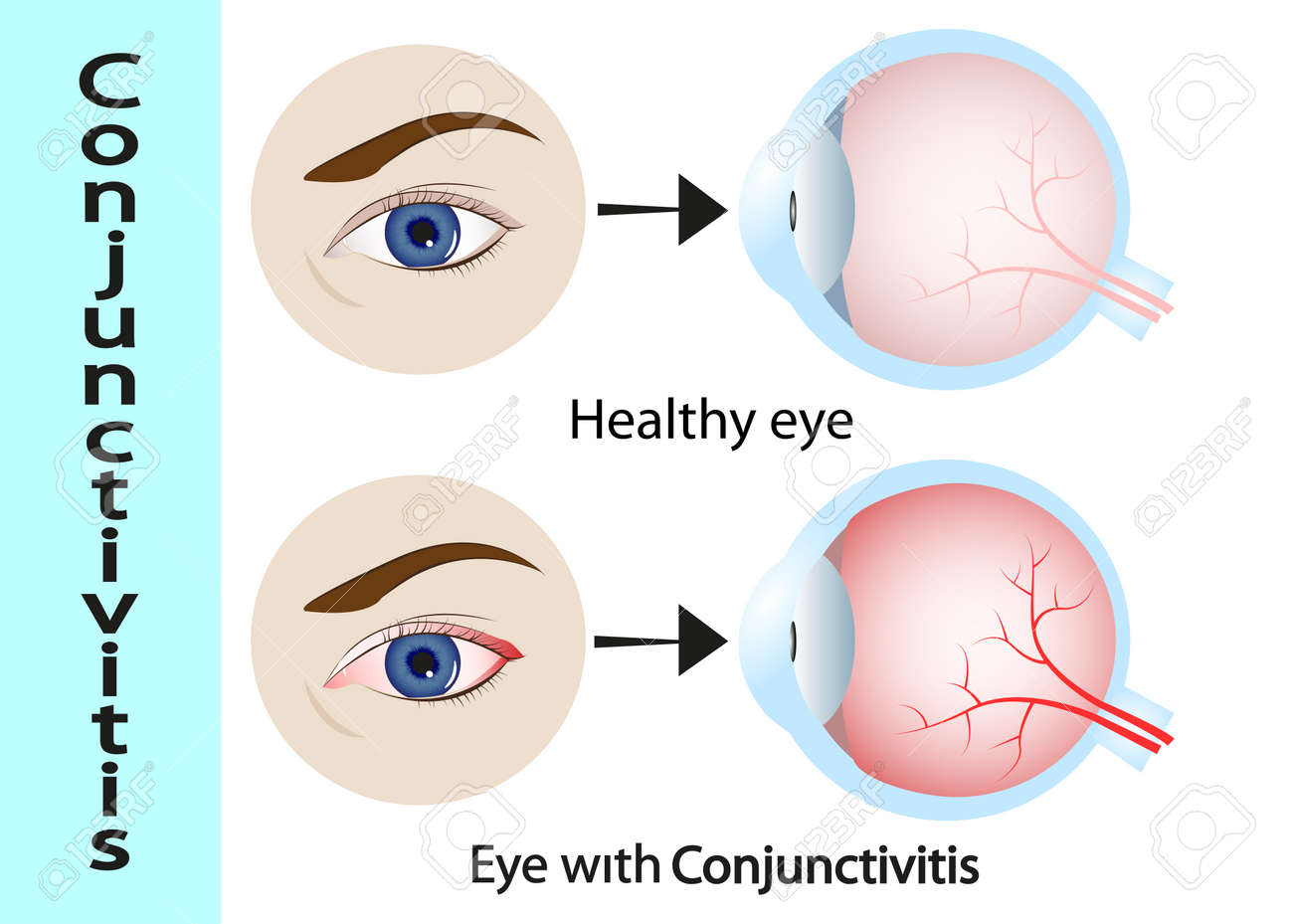 Conjunctivitis pink eye with inflammation external view and conjunctivitis pink eye with inflammation external view and vertical section of the ccuart Gallery