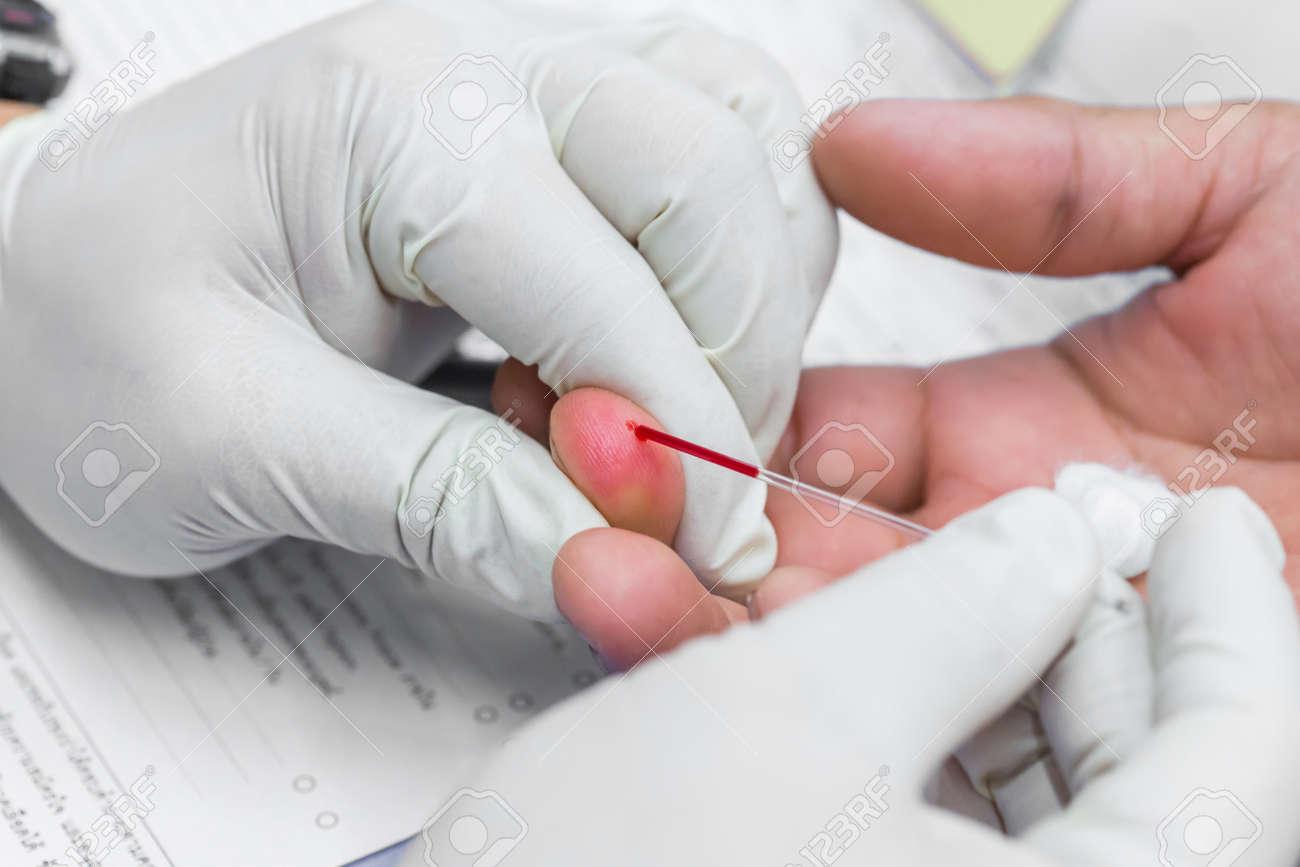 capillair bloed
