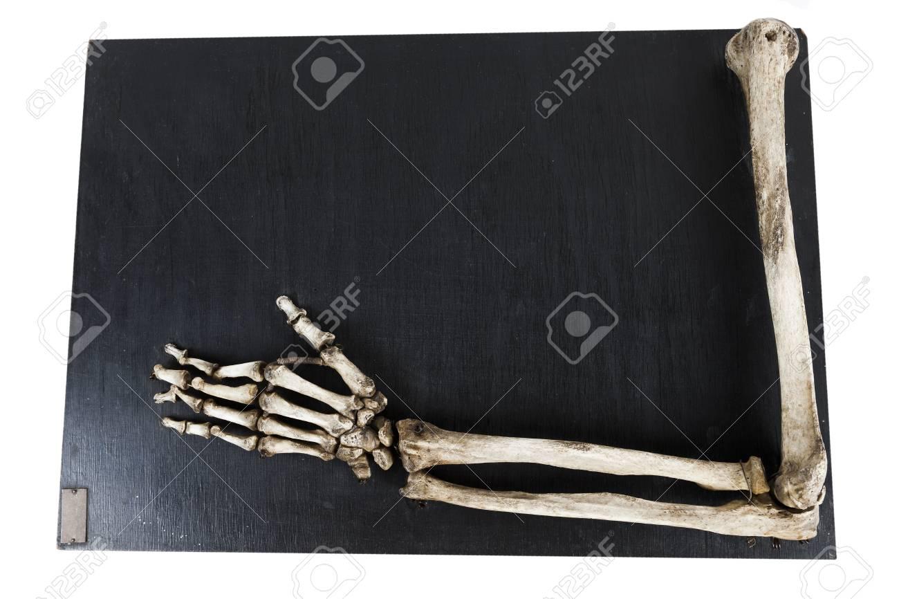 Modelo De Formación De Los Huesos De La Mano Humana Fotos, Retratos ...