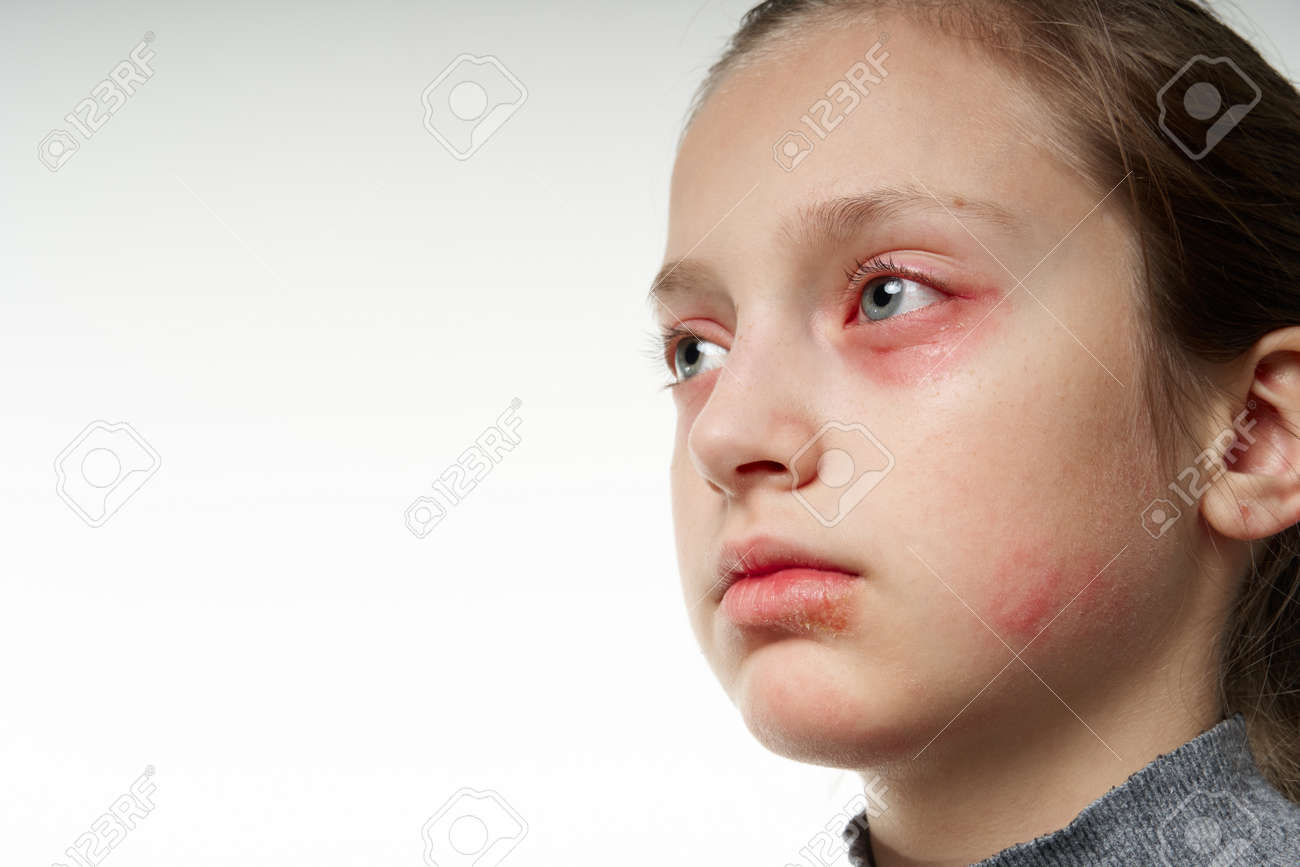 Allergic reaction, skin rash, close view portrait of a girl's face. Redness and inflammation of the skin in the eyes and lips. Immune system disease. - 137322021
