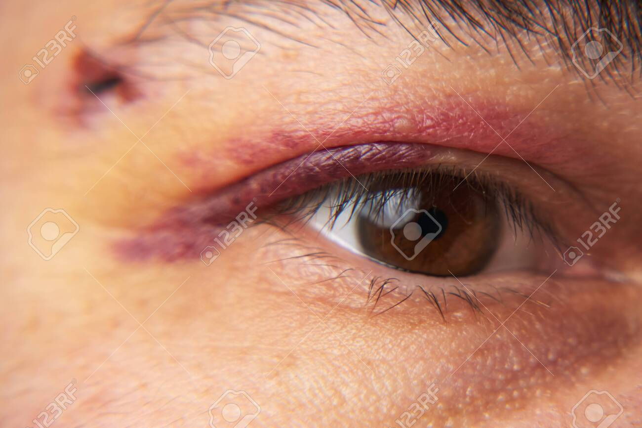 close view of a bruise near the eye, the face of a man with a hematoma - 148352941
