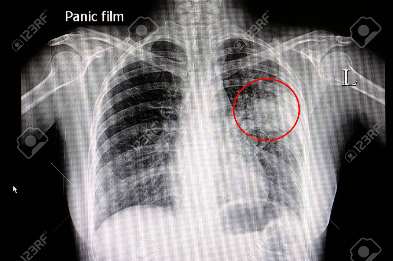 Xray film of a patient with pneumonia in his left middle lung - 85251856