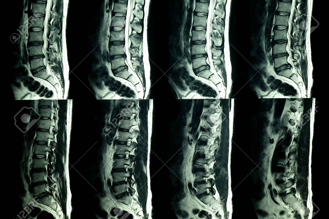 MRI Scan Of Lumbar Spines Of A Patient With Chronic Back Pain ...