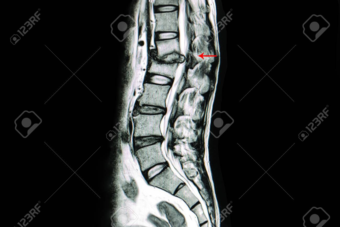 MRI Scan Of Lumbar Spines Of A Patient With Kyphosis And Back ...