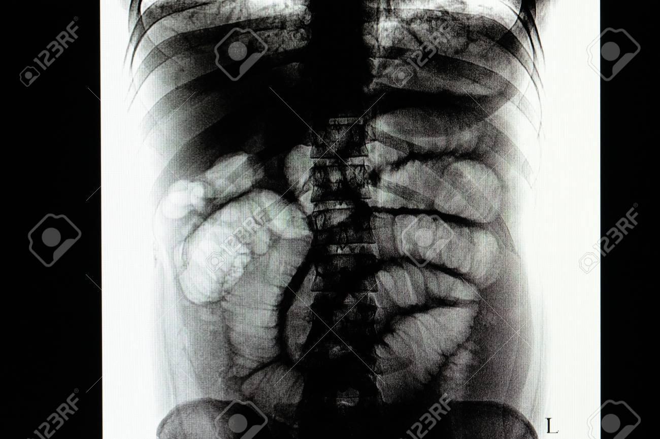 que es el gas intestinal