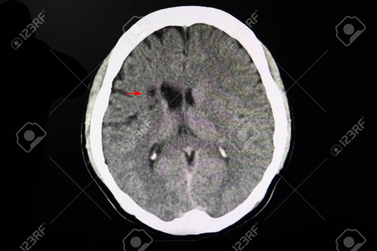 Ct Brain Scan In A Stroke Patient Showing Areas Of Infarction Stock Photo Picture And Royalty Free Image Image 127974791