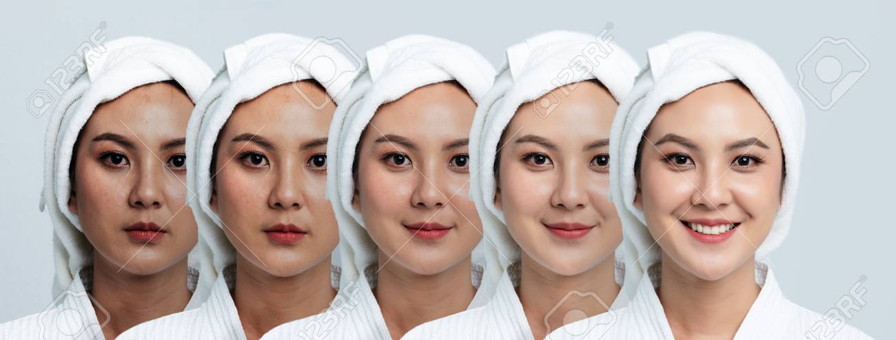 Comparison Portrait of Beautiful Asian woman. Dark spots and new skin, Before - After skin care and clean concept, Beauty treatment process of aging for rejuvenation. - 123736094