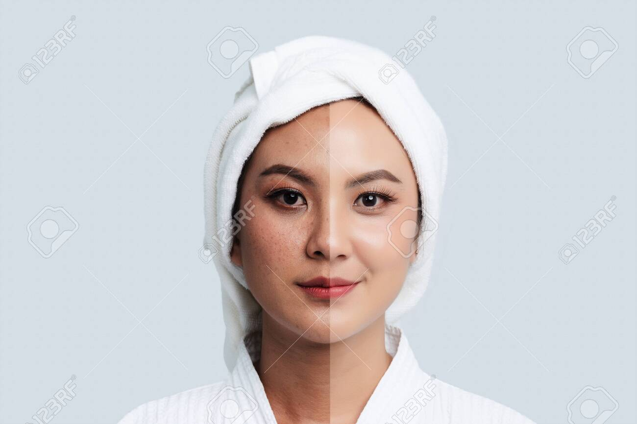 Comparison Portrait of Beautiful Asian woman. Dark spots and new skin, Before - After skin care and clean concept, Beauty treatment process of aging for rejuvenation. - 123736387