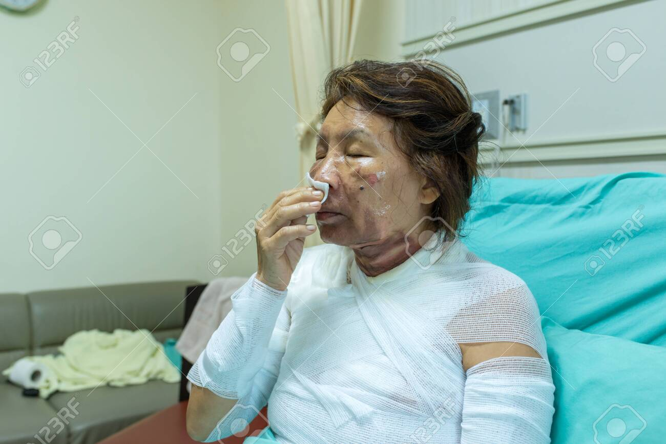 Nursing care and treatment for patient at burn unit in hospital. - 119738841