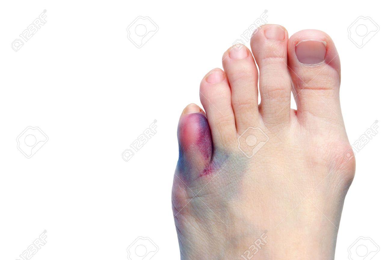 Сильный ушиб пальца на ноге: что 38