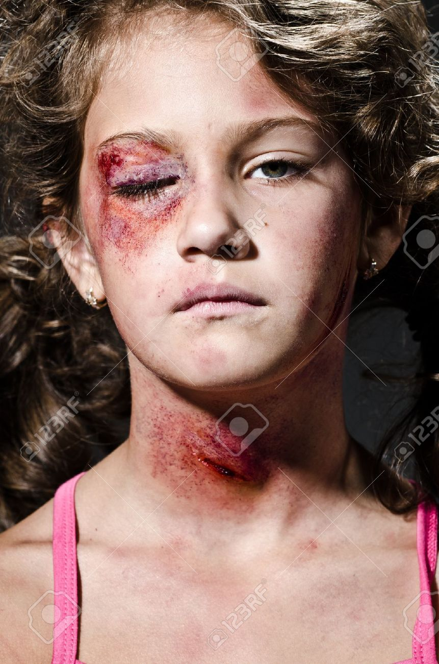 Injured child posing as victim of domestic violence Stock Photo - 15783114