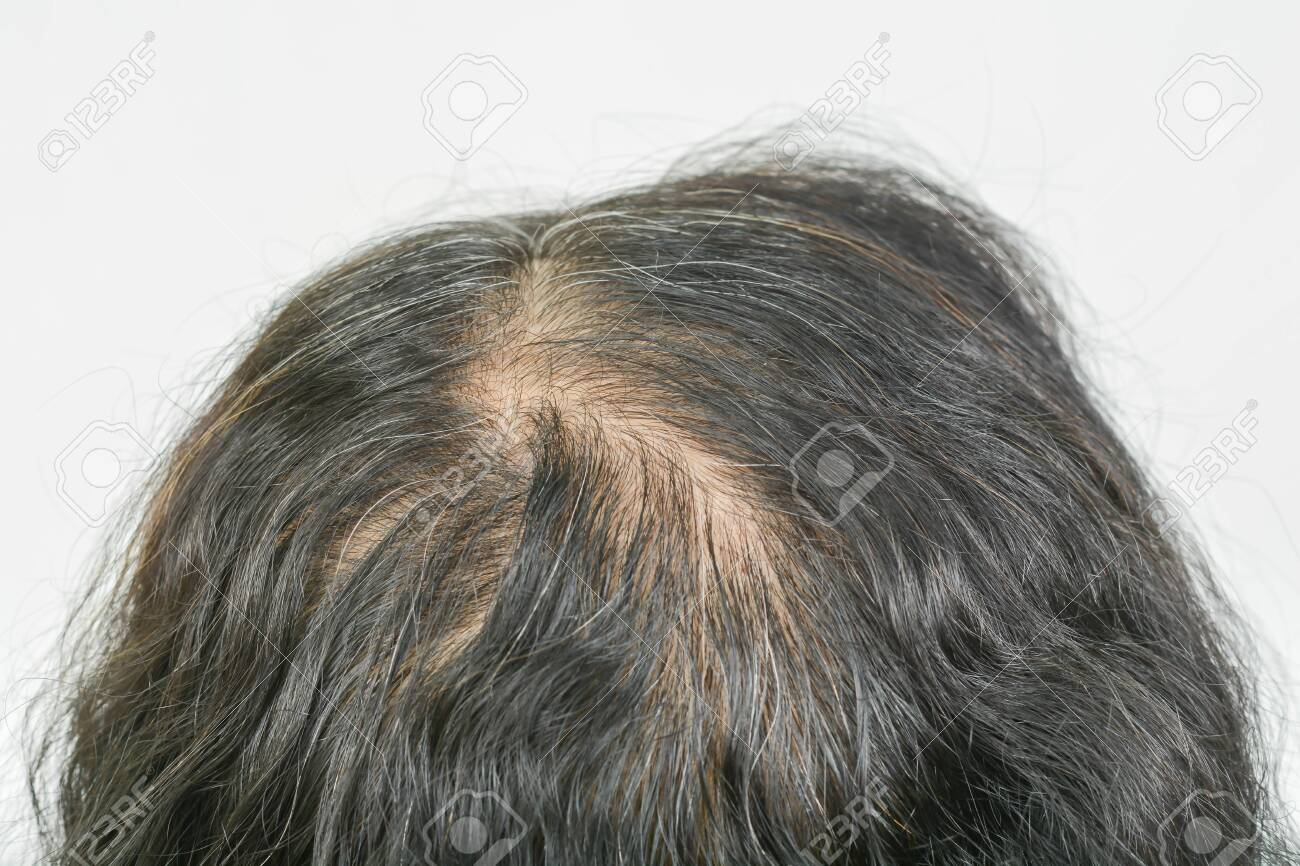 thin hair in women - 153115464