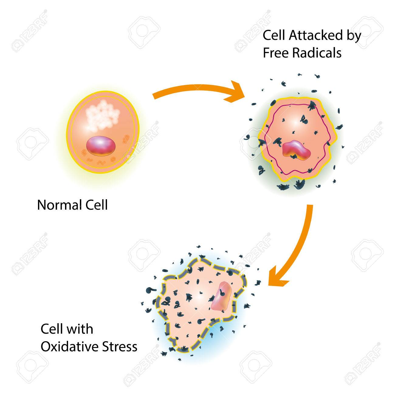 Oxidative stress of a healthy cell caused by an attack of free radicals - 78003716