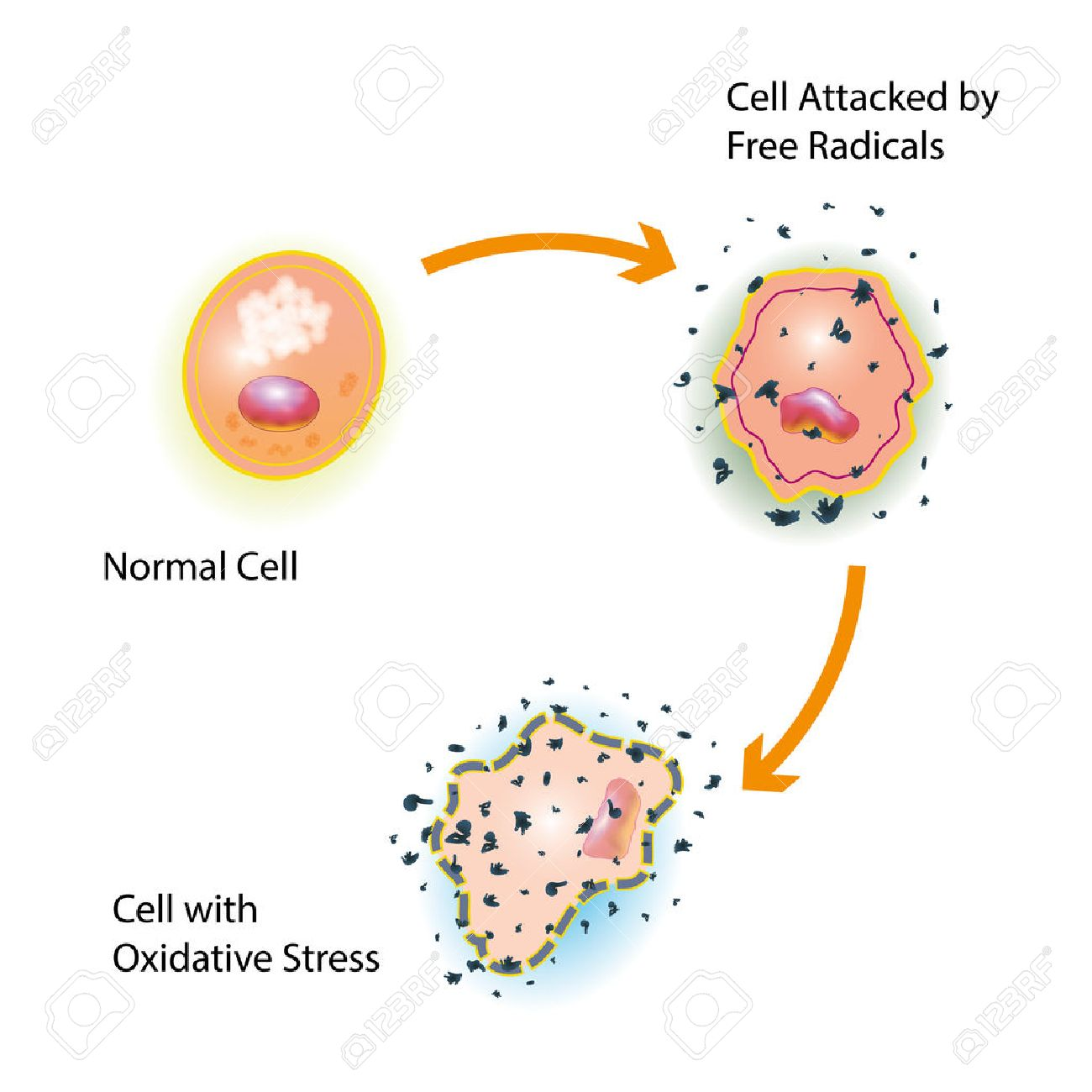 Oxidative stress of a healthy cell caused by an attack of free radicals - 76371895