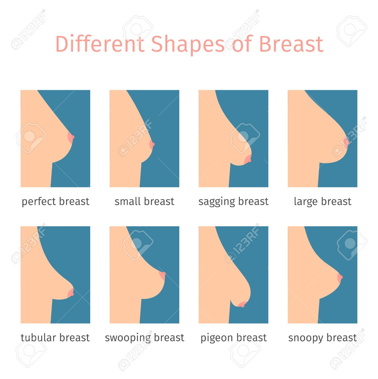 Breast shapes icons in flat style. illustration - 56382090