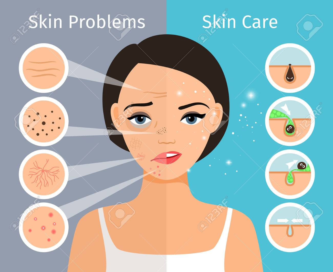 Home facial skin clean and oily, care and cosmetology. Female head with beautiful skin problems solution vector illustration - 76594384