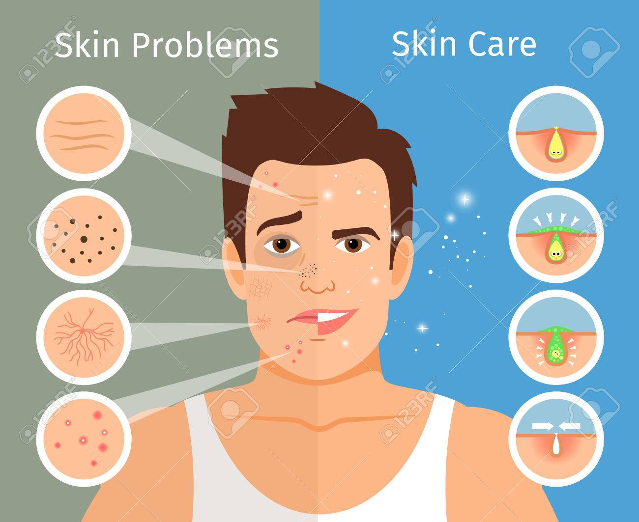 Male face skin treatment illustration, young man portrait with beautiful and troubled facial skins. - 76736267
