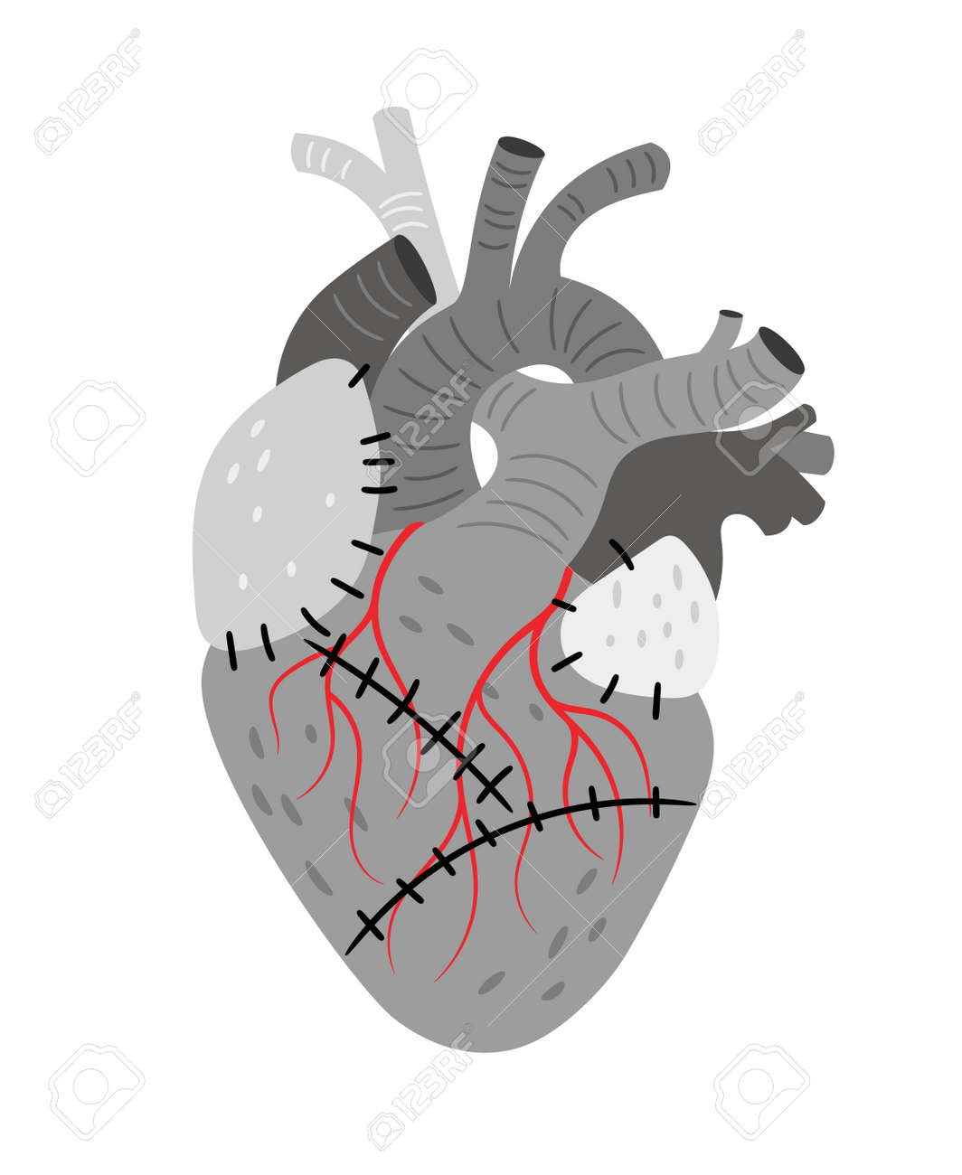 Anatomical organ, heart with stitches - 170995408