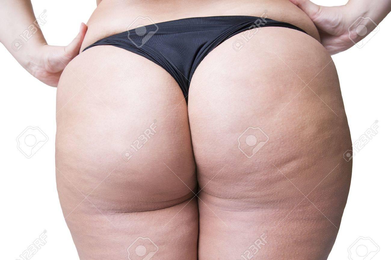 Fat Cellulite Butt