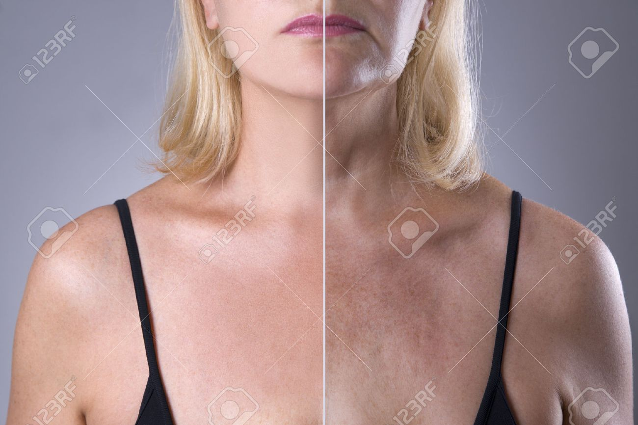 Rejuvenation Woman S Skin Before After Anti Aging Concept