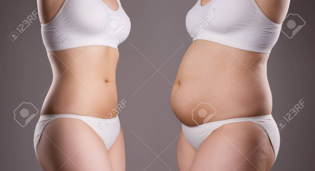Woman's body before and after weight loss on gray background, plastic surgery concept - 139227900