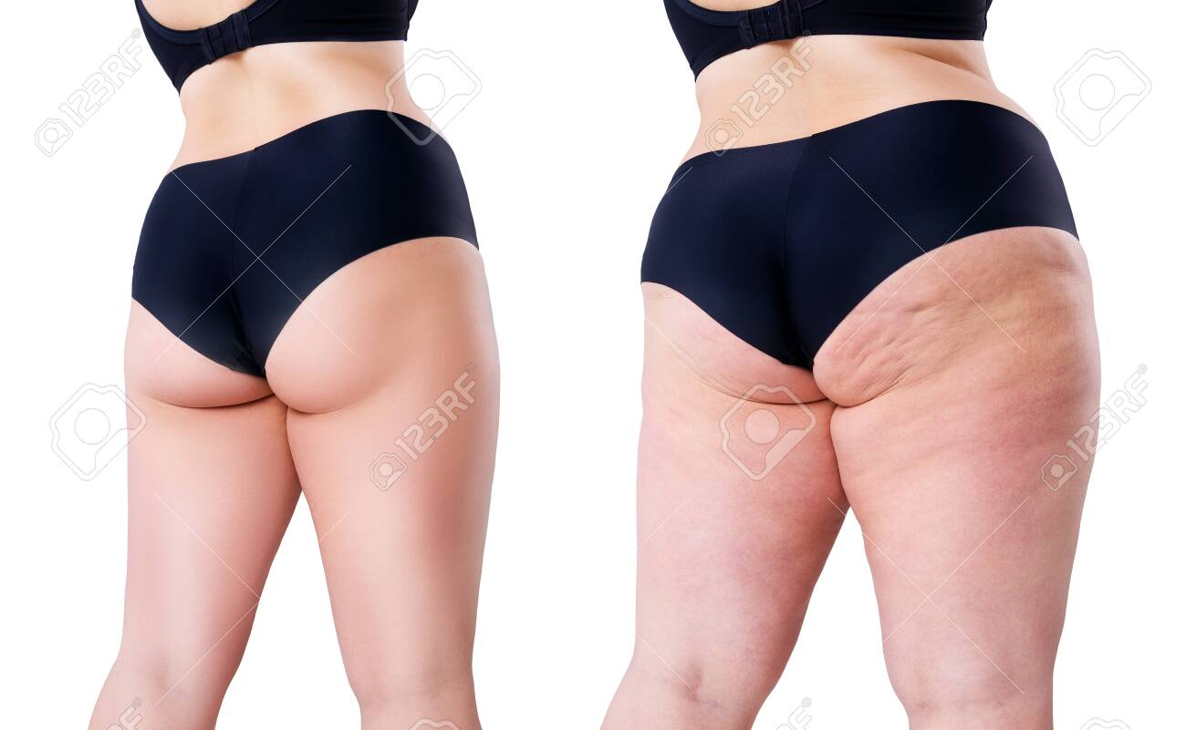Overweight woman with fat legs and buttocks, before after weight loss concept, obesity female body isolated on white background - 141975774