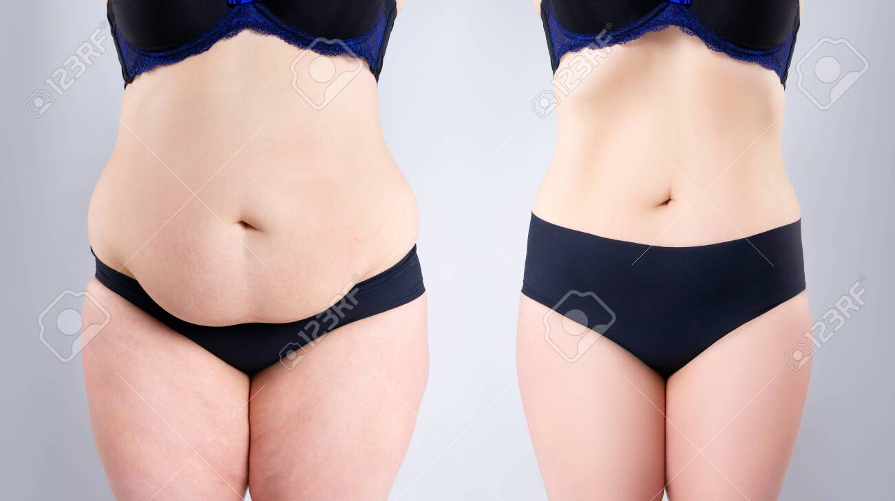 Woman's belly before and after weight loss on gray background, plastic surgery concept - 141975528