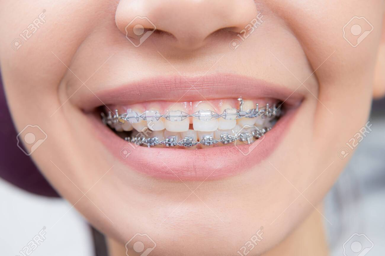 Smiling happy woman mouth with tongue and braces. Orthodontics occlusion correction in dentistry. front view - 135469286