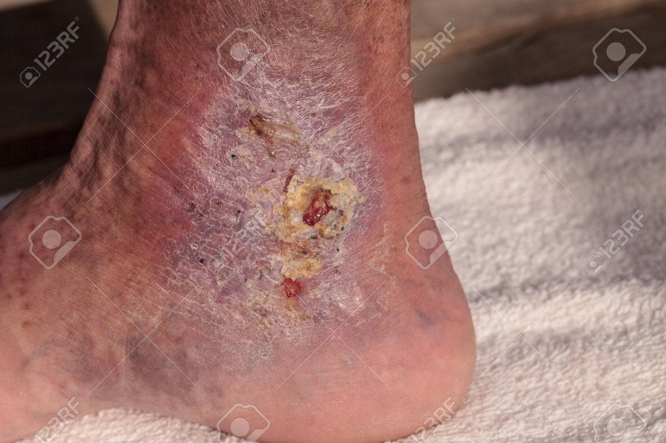 Medical Picture: Infection Cellulitis On The Skin Of An Ankle ...