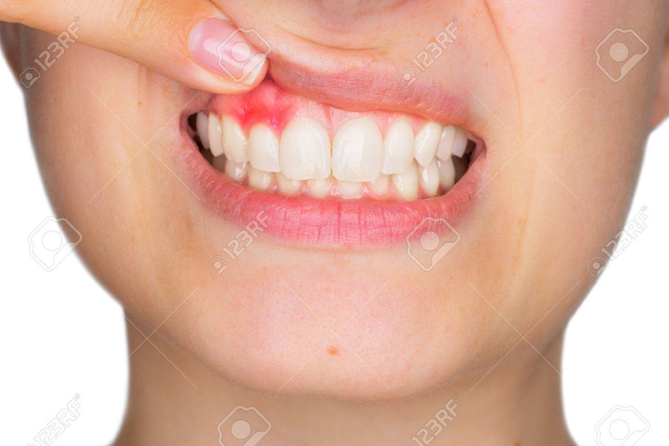 Closeup portrait of young woman showing, with his finger, inflamed upper gingiva with pain expression. Dental care and toothache. - 76656073