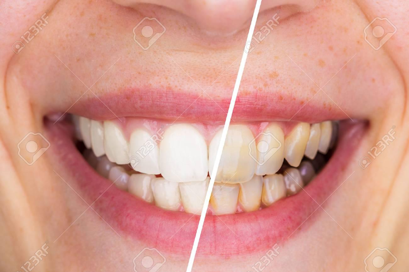 traitement de blanchiment des dents