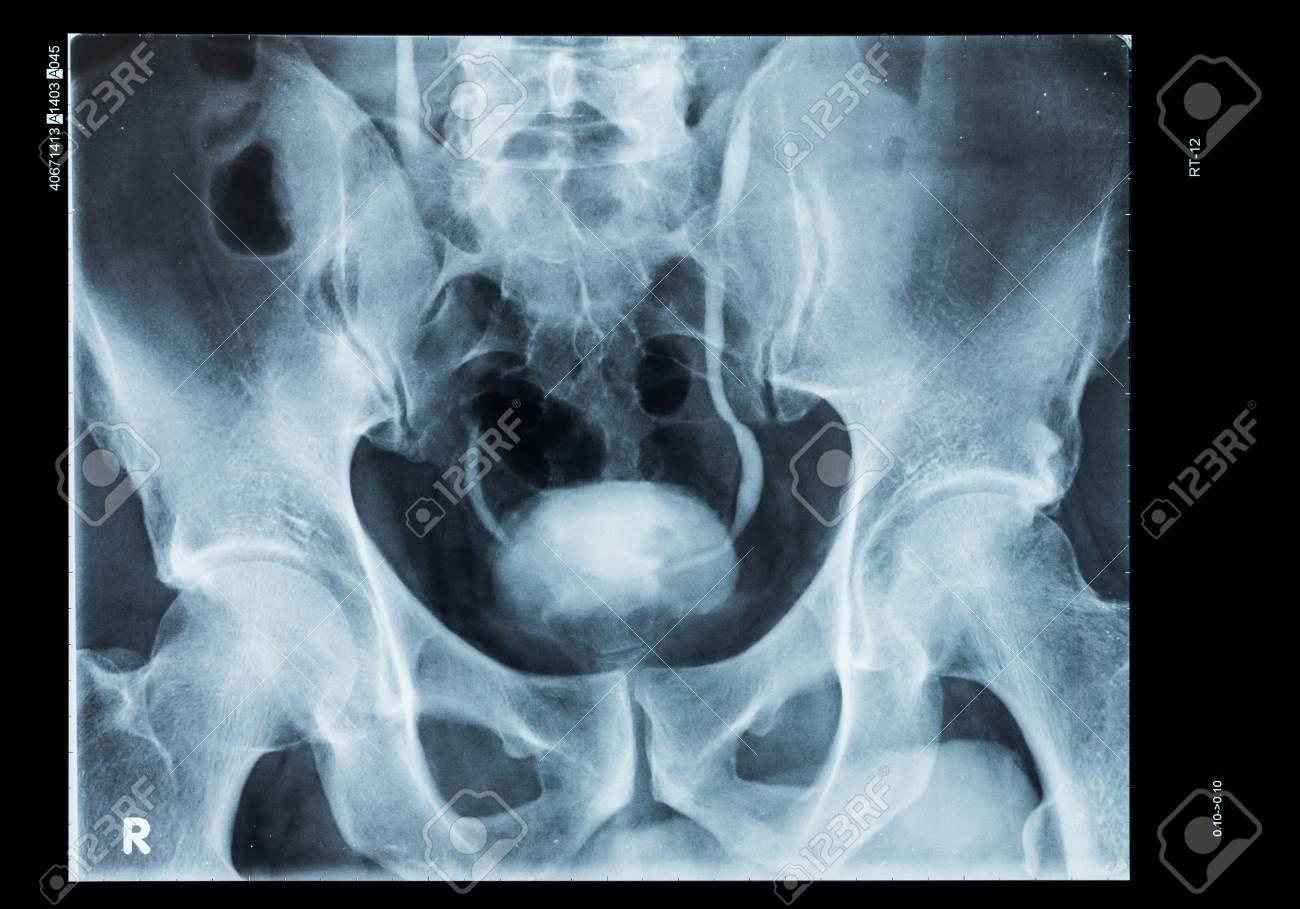 Radiografía De Pelvis Y Vejiga Humana Con Medio De Contraste Fotos ...