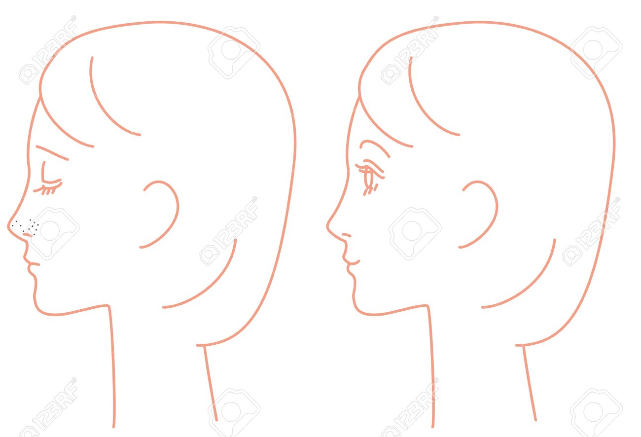 Nose, keratin plug, pores, sebum, blackheads
