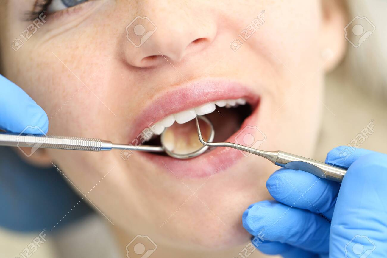 Closeup of face of female who undergo detntist checkup. - 135484003