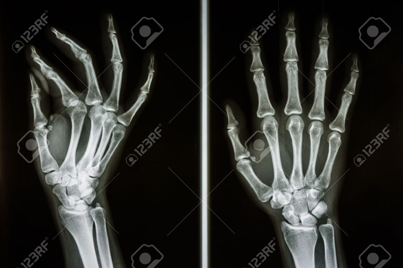 Film X-ray Show Bones Of Human Hands Stock Photo, Picture And ...