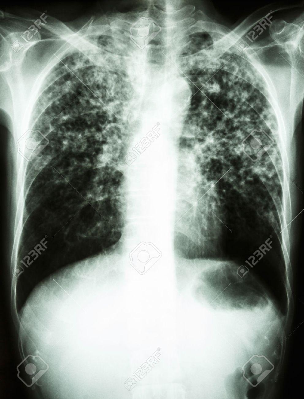 Ziemlich X Ray Fußanatomie Fotos - Anatomie Ideen - finotti.info