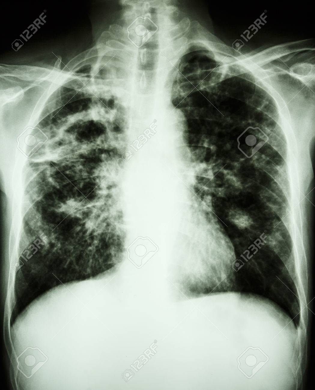 film chest x-ray show cavity at right lung,fibrosis & interstitial & patchy infiltrate at both lung due to Mycobacterium tuberculosis infection (Pulmonary Tuberculosis) Stock Photo - 26045077