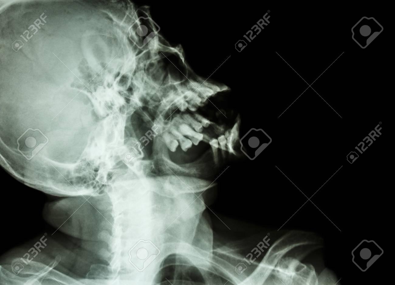 Radiografía Radiografía Lateral De Cráneo: Mostrar Cráneo Humano ...