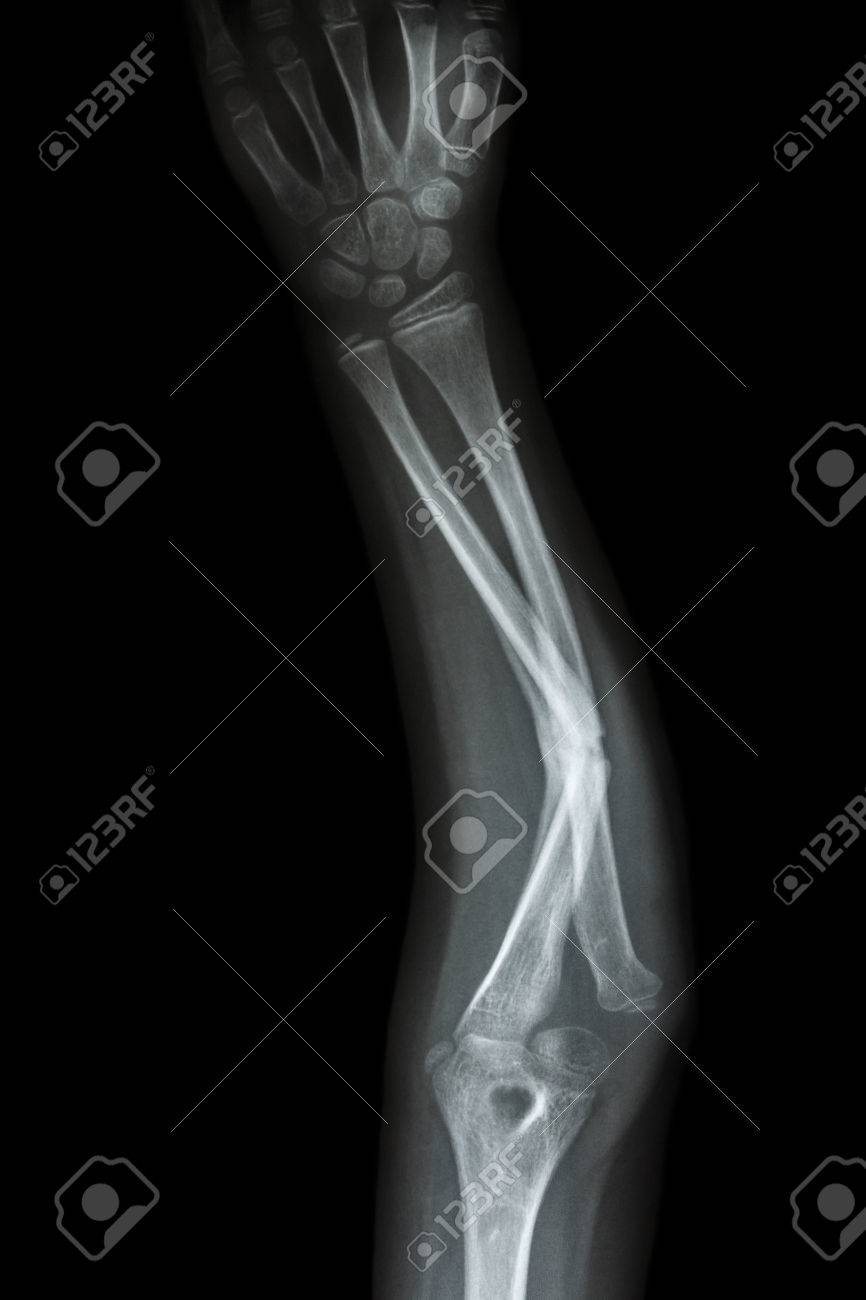 Film X-ray Forearm AP : Show Fracture Shaft Of Ulnar(forearm\'s ...