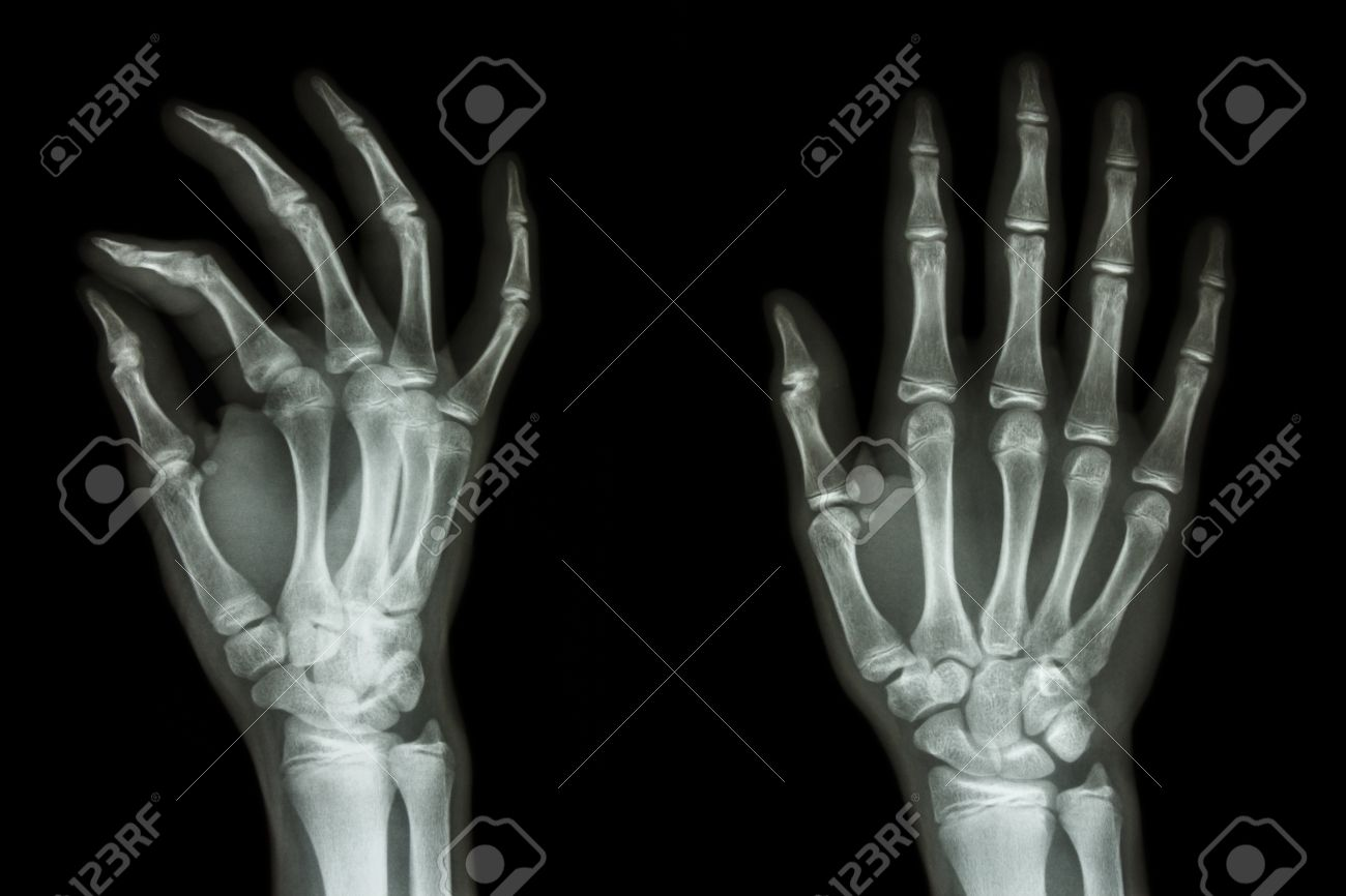 Film X Ray Hand Apoblique Show Normal Humans Hand Stock Photo