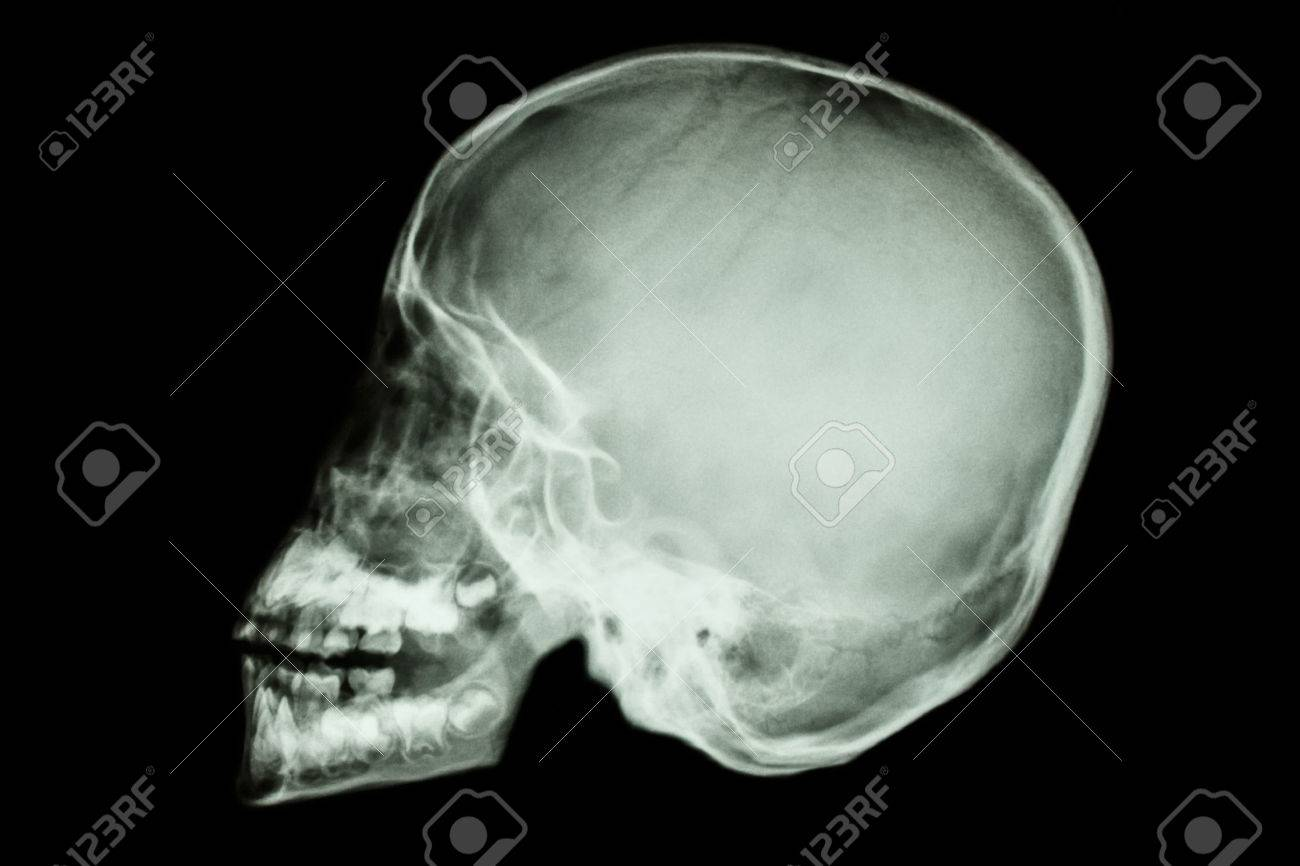 Film X-ray Asiatisches Kind Schädel Lizenzfreie Fotos, Bilder Und ...