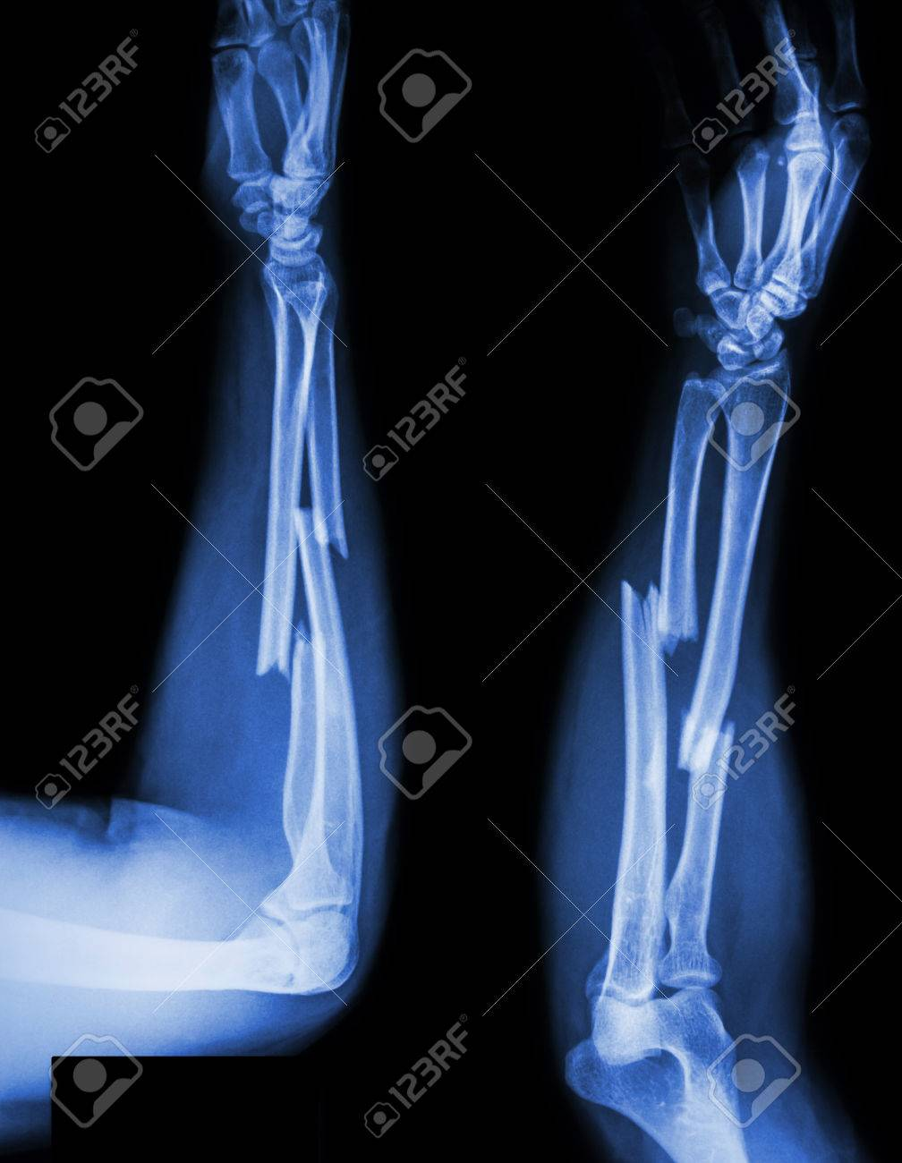 Fracture Shaft Of Radius & Ulnar Bone Stock Photo, Picture And ...