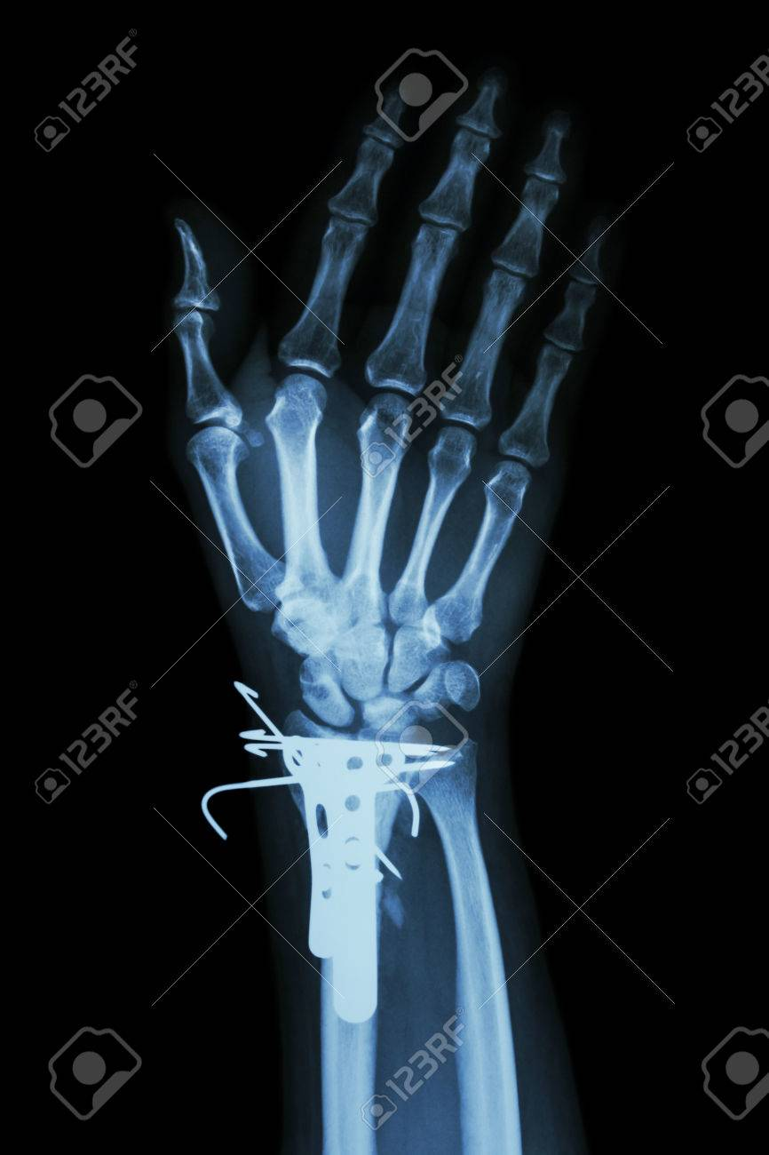 Fracture Distal Radius (forearm Bone) And Internal Fixed By K-wire ...