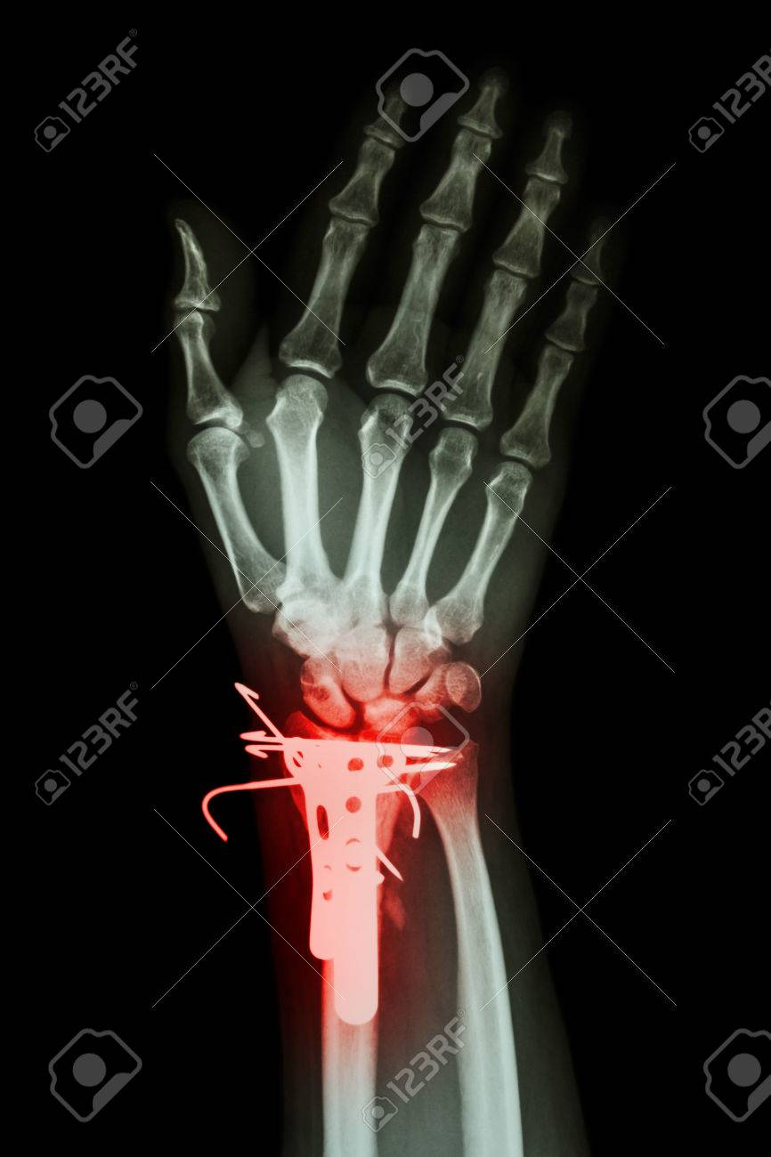 Fracture Distal Radius Forearm Bone And Internal Fixed By K Wire