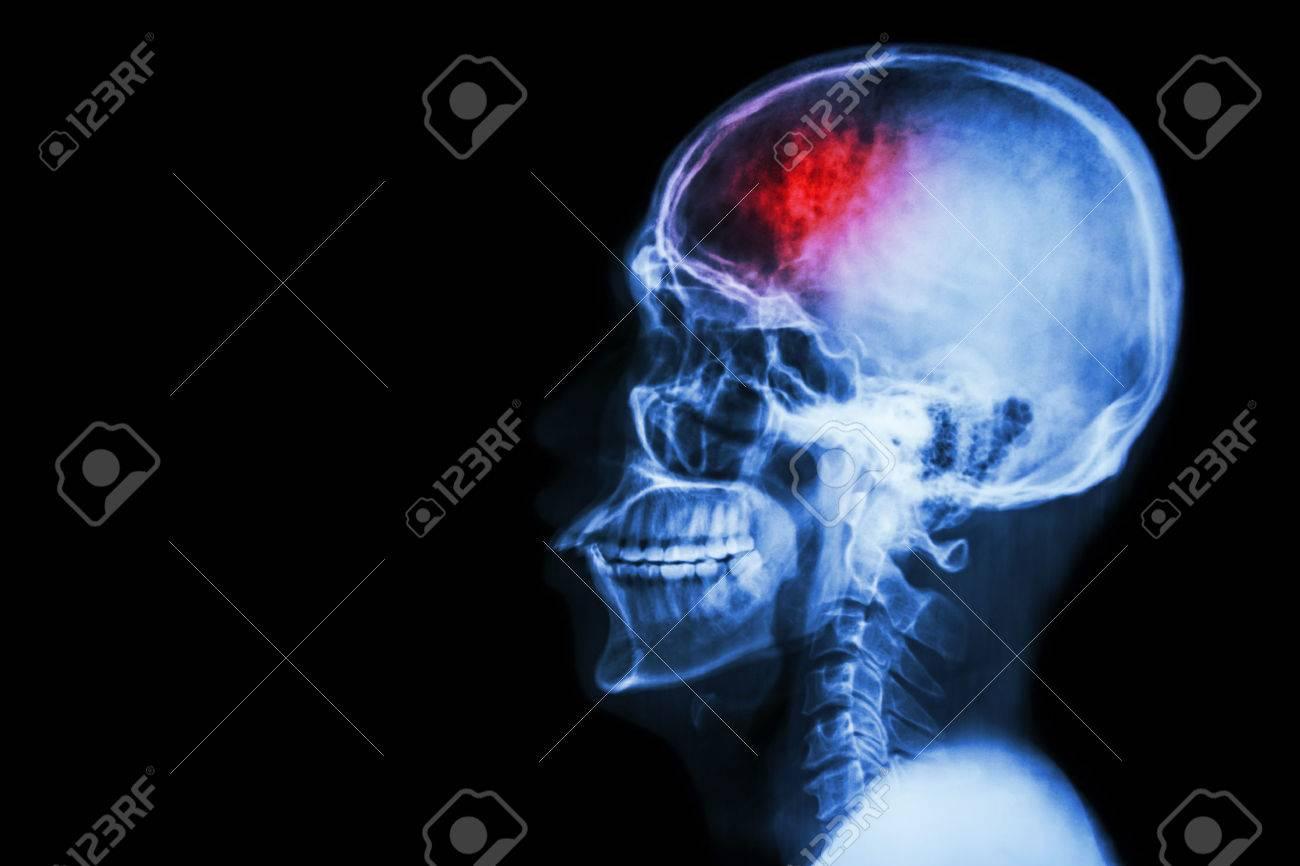 """stroke"""" (cerebrovascular accident). film x-ray skull lateral, Skeleton"""