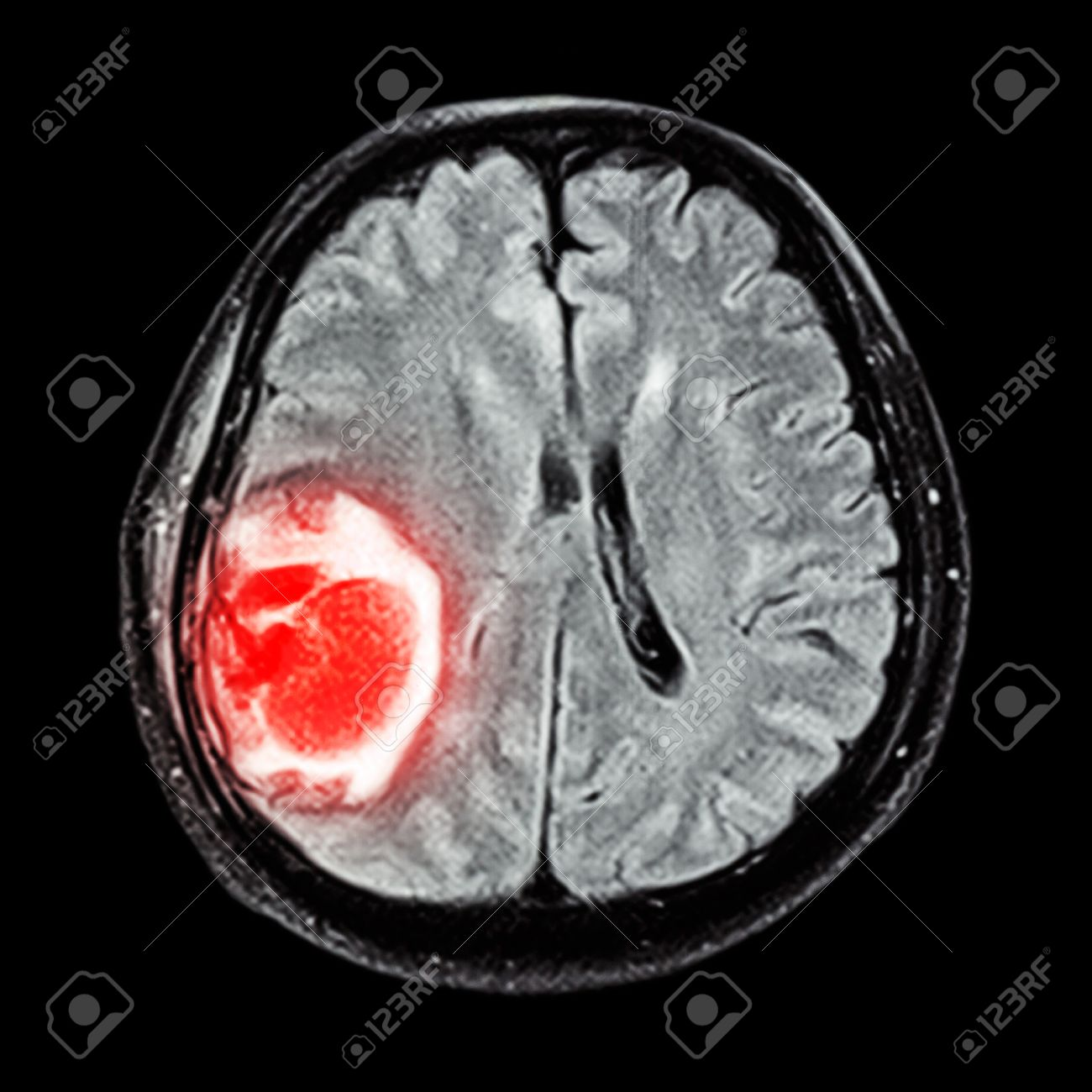 Mri Brain Show Brain Tumor At Right Parietal Lobe Of Cerebrum
