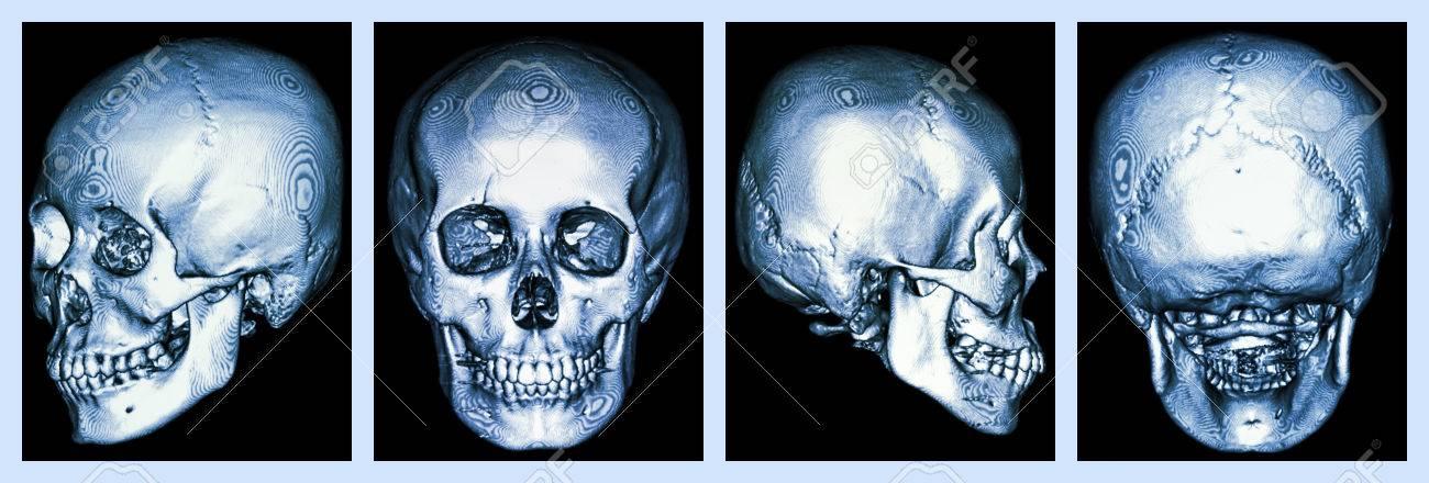 CT-Scan Der Menschlichen Schädel Und 3D- Lizenzfreie Fotos, Bilder ...