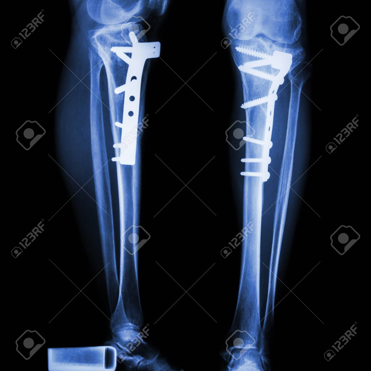 8f8ffc0a21a fracture tibia(leg bone). It was operated and internal fixed by plate&screw  Imagens